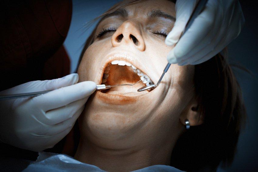 Есть более восьми зубных пломб?
